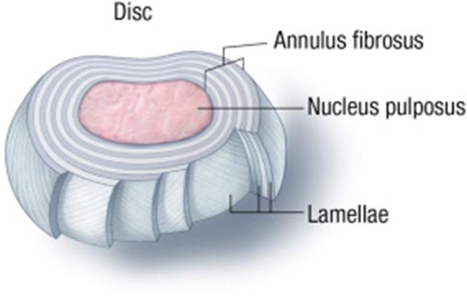 Evaluación y tratamiento de la lumbalgia - Artículos - IntraMed
