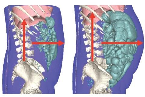 medicamentos para la distension abdominal