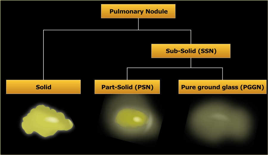 Tipos de quistes pulmonares