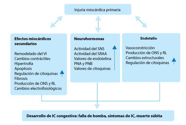 diabetes e insuficiencia cardíaca en el paciente post infarto de miocardio