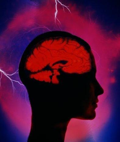 http://www.intramed.net/UserFiles/Images/brain.home2.pablo.JPG