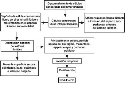 Cancer peritoneal avanzado, Cancer peritoneal avanzado esperanza de vida Que es cancer fase 4