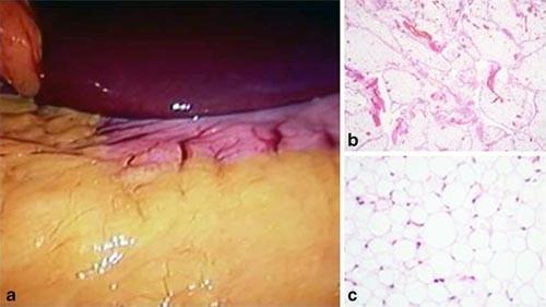 El epiplón: aspectos anatómicos, metabólicos y quirúrgicos ...