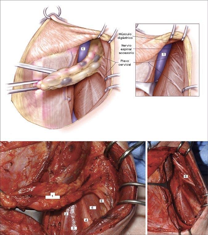 Cirugía del carcinoma papilar de tiroides - Artículos - IntraMed