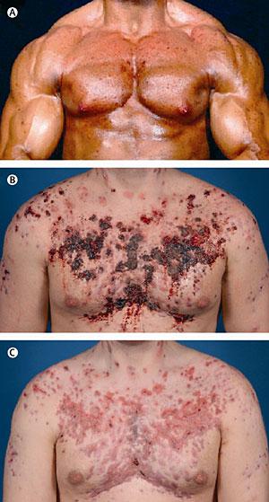 Improve Your que son los esteroides In 4 Days