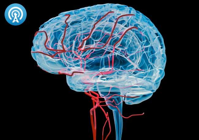 Síndrome de vasoconstricción cerebral reversible - Artículos - IntraMed