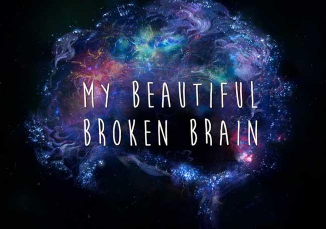 My Beautiful Broken Brain - Arte y Cultura - IntraMed