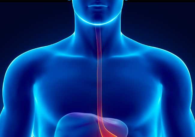 Acalasia esofágica - Artículos - IntraMed