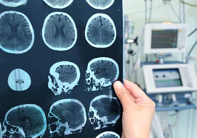 Accidente cerebrovascular - Artículos - IntraMed