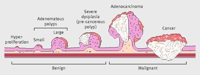 Cancer de colon jovenes