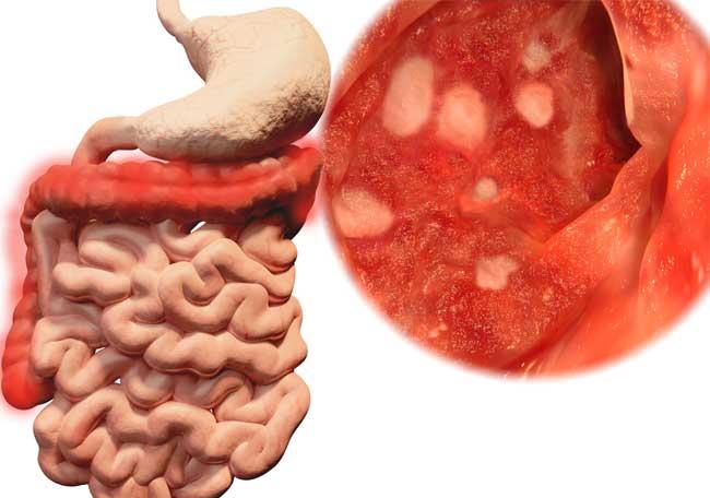 tratamiento del sindrome de El Salvadoran colon excitable pdf