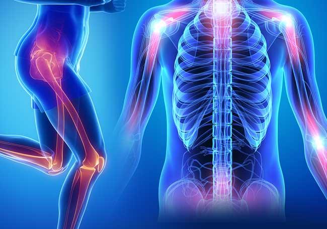 Dolor Osteo Mio Articular - Cursos finalizados - IntraMed