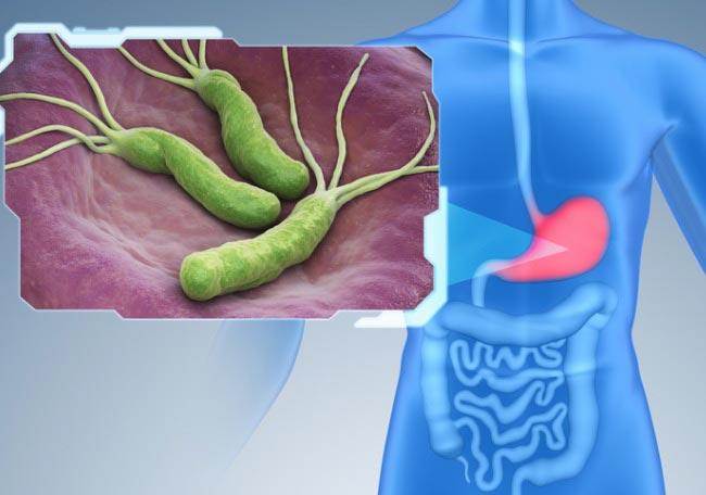 Resultado de imagen para helicobacter pylori