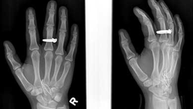Falsificaciones de rayos x para el foro para adultos