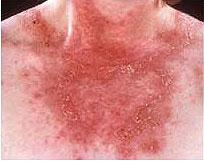 Lupus Cutaneo Subagudo