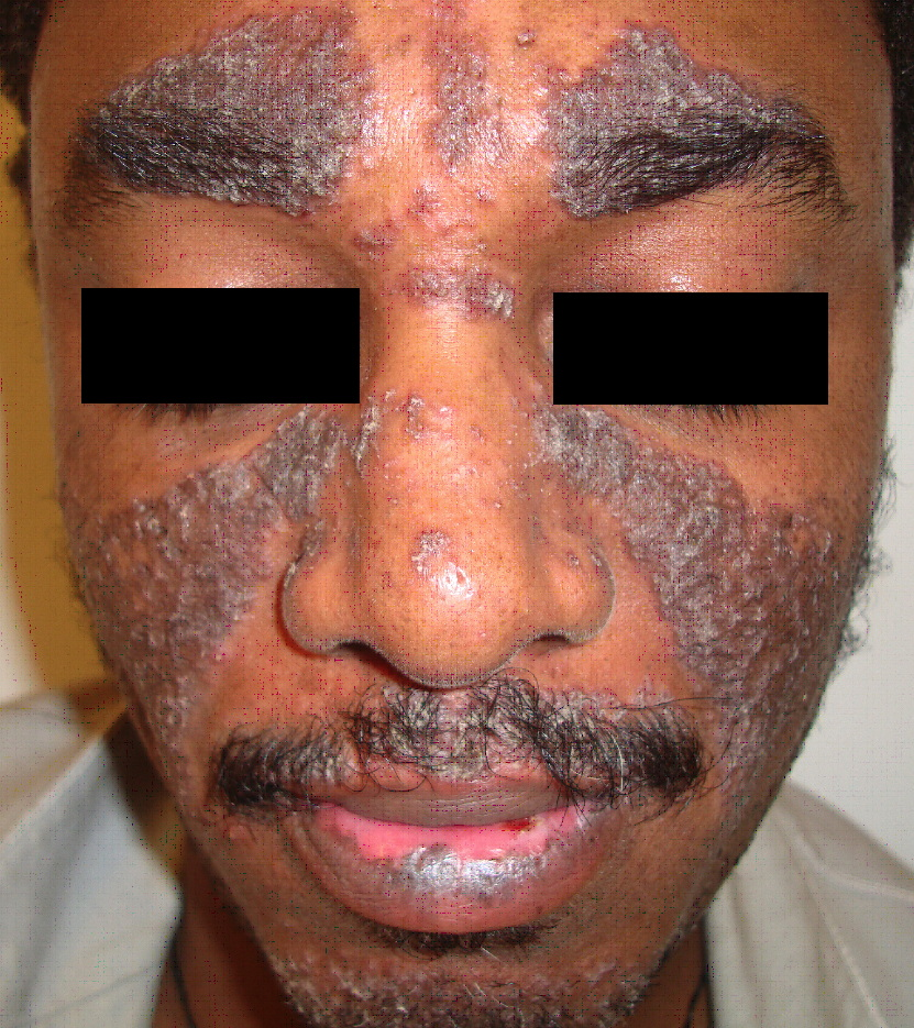 acne from steroids pictures