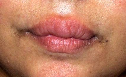 dominante labio