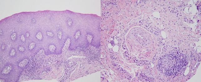 Cheilitis Granulomatosa Treatment & Management: Approach ...