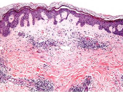 Dermatitis shiitake - Artículos - IntraMed