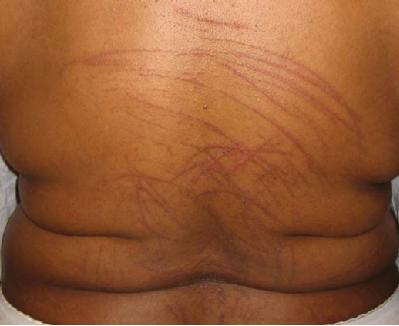 Biopsy of Skin Rashes and Non-Neoplastic Skin Disorders