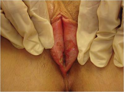 Los labios vaginales de esta zorra son enormes - 2 part 5