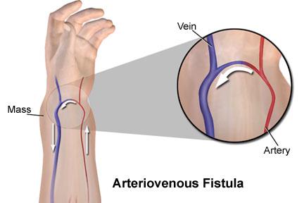 Manejo de las fistulas arteriovenosas - Artículos - IntraMed
