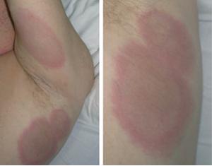 La información sobre atopichesky la dermatitis