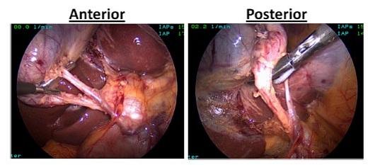 Visión Crítica de Seguridad durante la colecistectomía laparoscópica ...