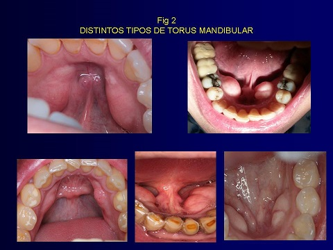Exostosis benignas de los maxilares - Artículos - IntraMed