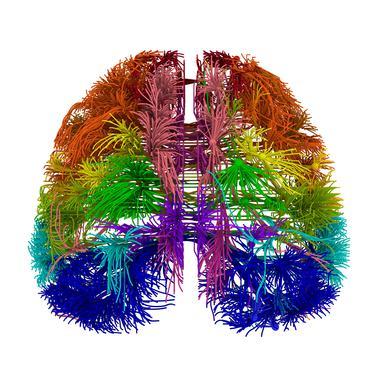 El cerebro humano tiene una red de conexiones casi ideal