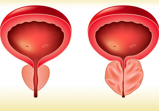 a prostatitis tabletták omnik árából vesekő ugrálás